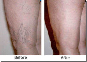 Sclerotherapy Best Way Treat Varicose Veins.png
