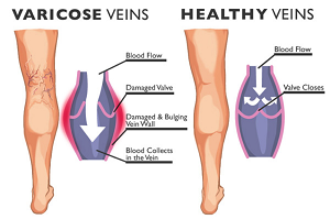 Treatment Trends Varicose Veins Treated High Success Rates.png
