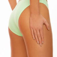 fractional laser stretch mark removal